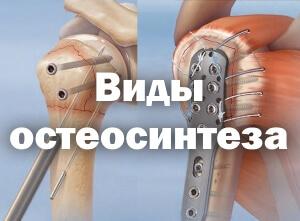 Интрамедуллярный остеосинтез