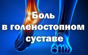 Лечение болей в голеностопном суставе лечение при артрозе суставов стопы