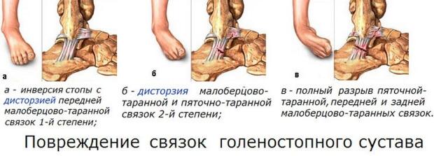 Повреждение