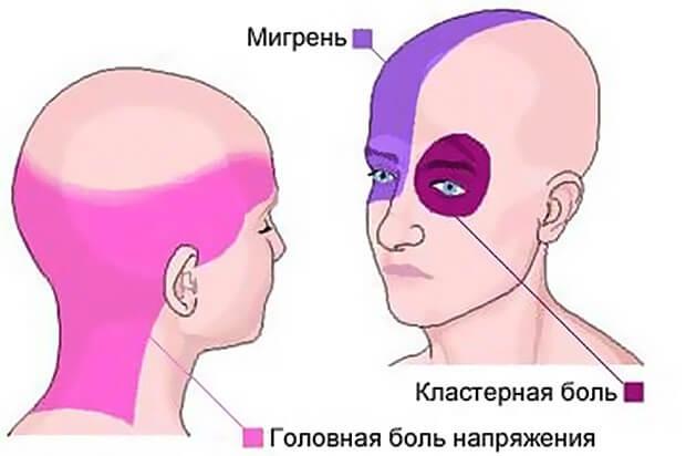 Болит голова при беременности Что делать если болит голова при беременности