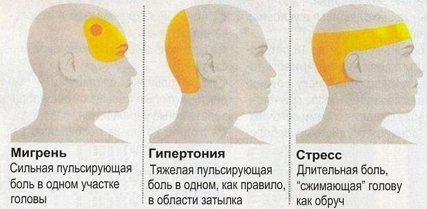 Виды боли в голове