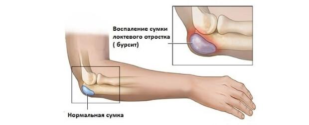 Ломота локтевых суставах структура плечевого сустава