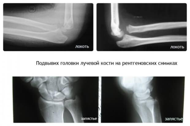 Подвывих головки лучевой кости