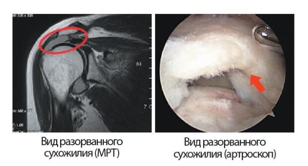 Разрыв сухожилия плеча
