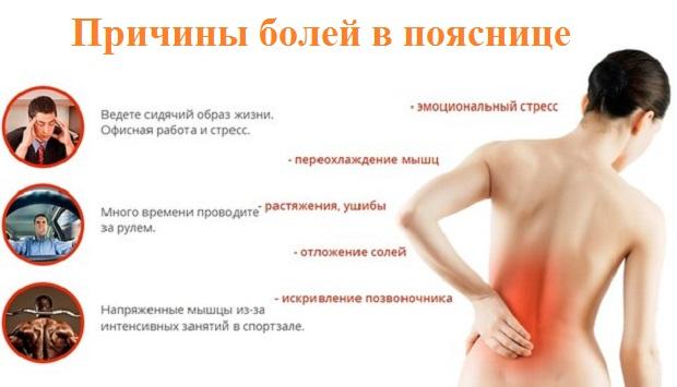 Причины болей в пояснице