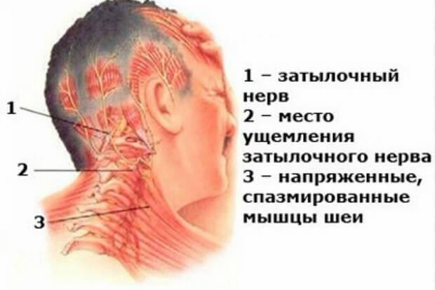 Диагноз если боль в шее