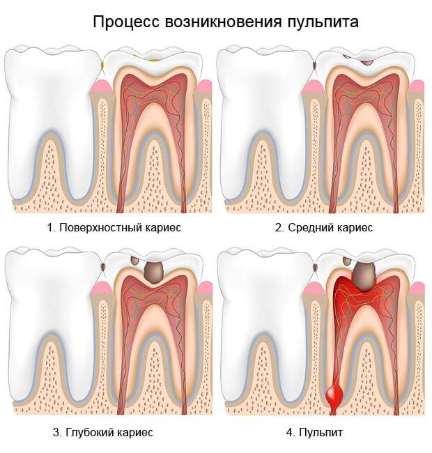 Почему после пломбирования зуб ноет и болит при надавливании Когда пора возвращаться в стоматологию