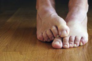 Опух большой палец на ноге без причины и болит