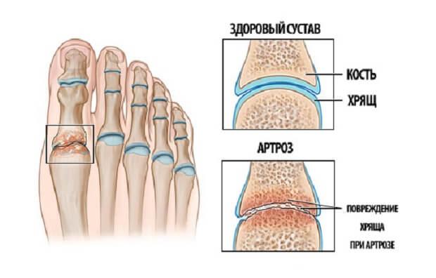 Артрит на ноге