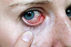 Болит глаз