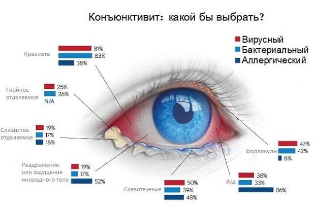 При нажатии болит глаз под верхним веком