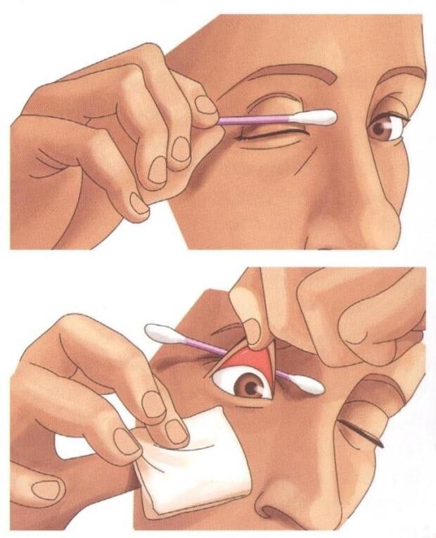 Как почистить глаз