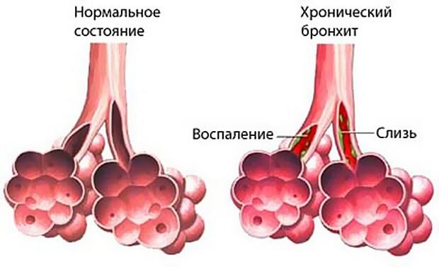 Заболевание бронхит