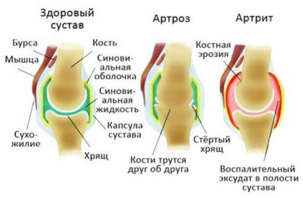 Появилось заболевание артрит