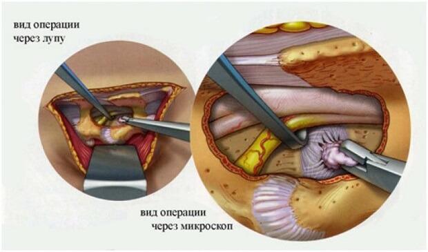 Грыжа под микроскопом