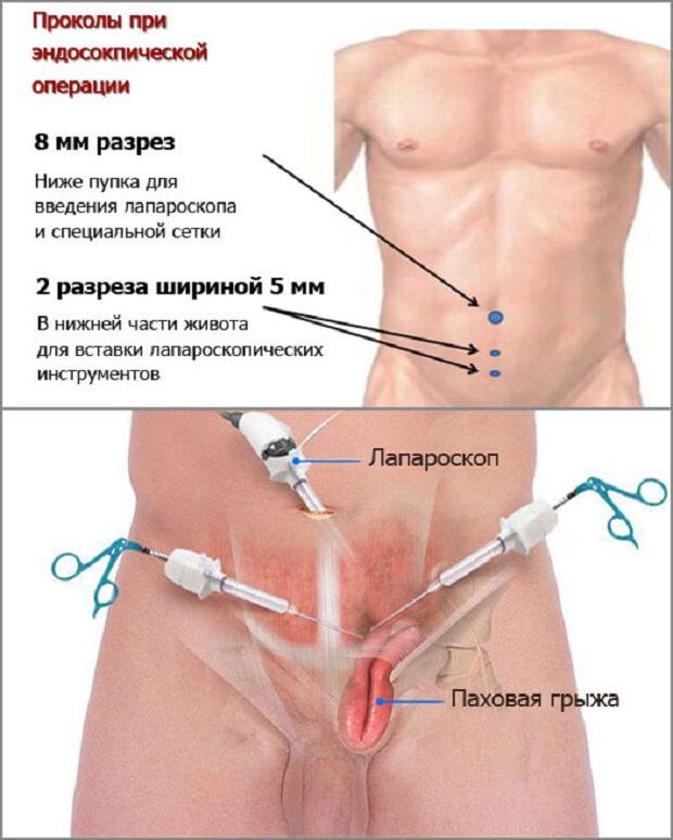 Эффективная операция