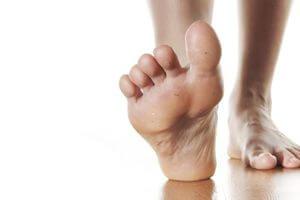 Проблемы на ногах