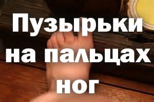 Пузырьки на ногах