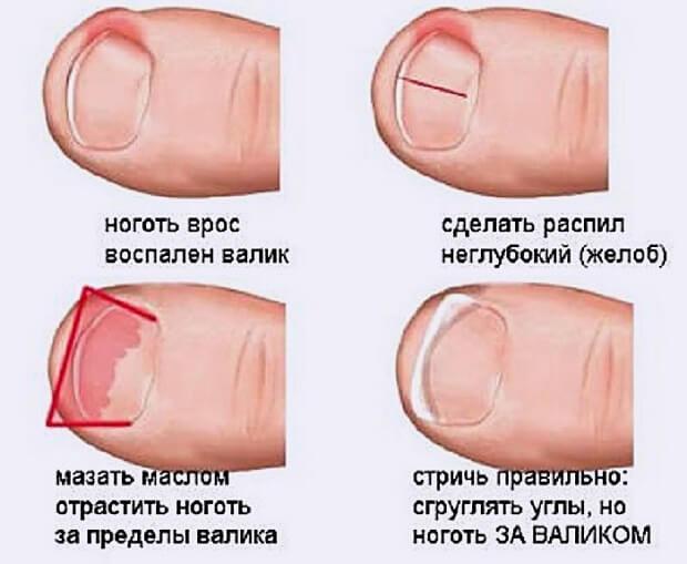 Как постригать ноготь