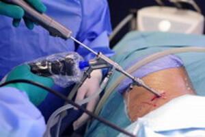 Необходимая операция
