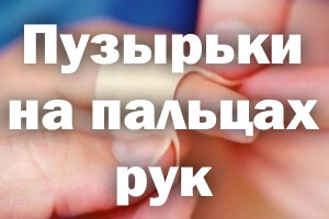 Пузырьки на пальцах рук
