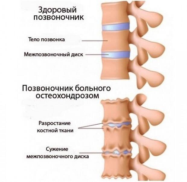 Тянет шею с правой стороны