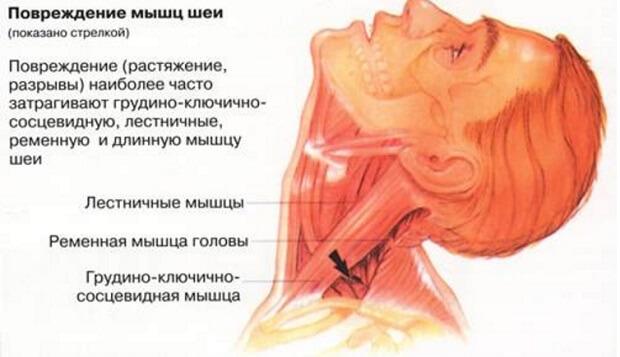 От чего болит шея