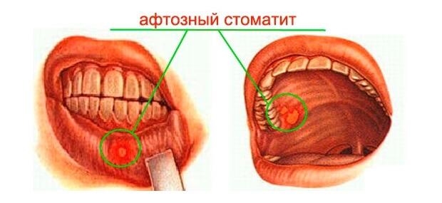 Заболевание