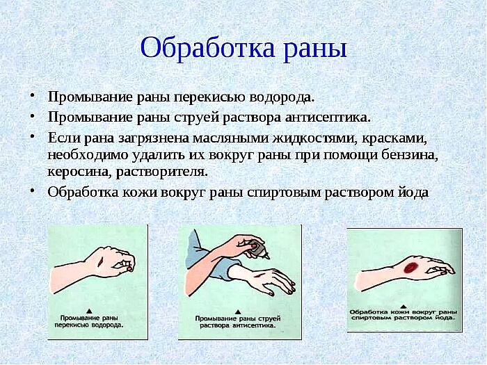 Обработка ран
