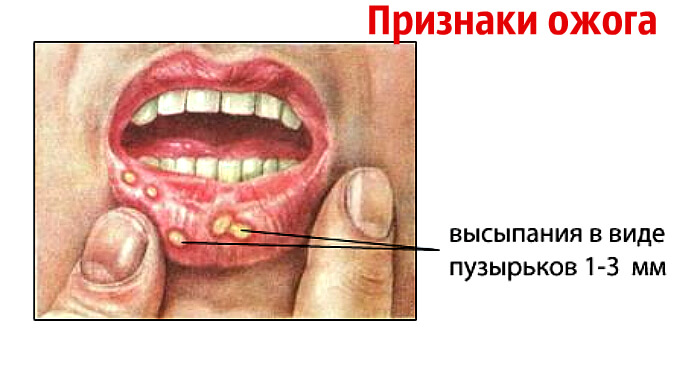 Симптоматика ожогов во рту