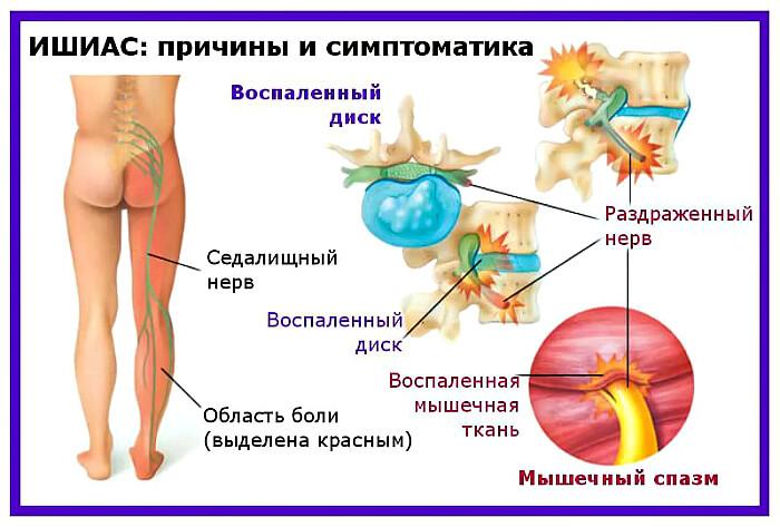 Симптоматика и причины болезни