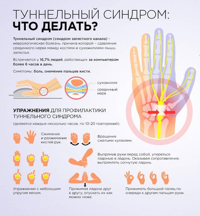 Характеристики туннельного синдрома