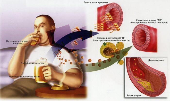Процесс возникновения атеросклероза