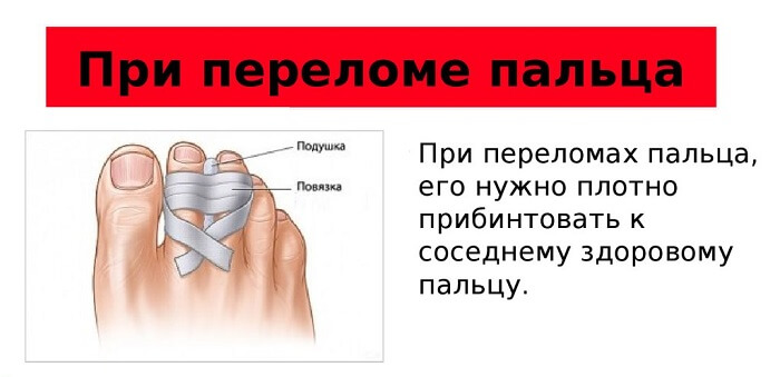Что делать при переломе пальца