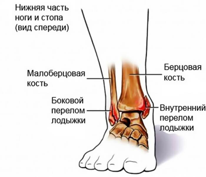 Характеристика перелома лодыжки