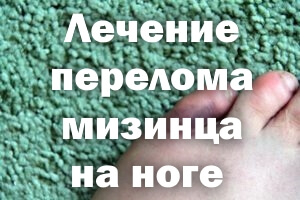 Лечение перелома мизинца на ноге
