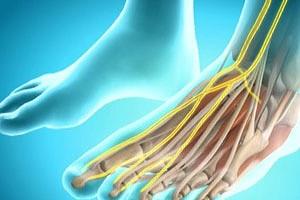 Дискомфорт в ноге