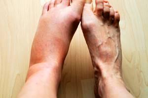 Отечность ноги