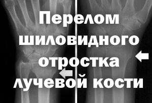 Перелом шиловидного отростка