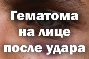 Гематома на лице после удара