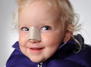 Сломанный нос у ребенка