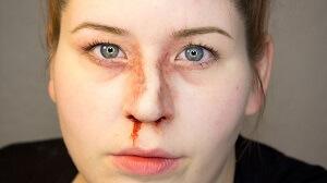 Сломанный нос у женщины