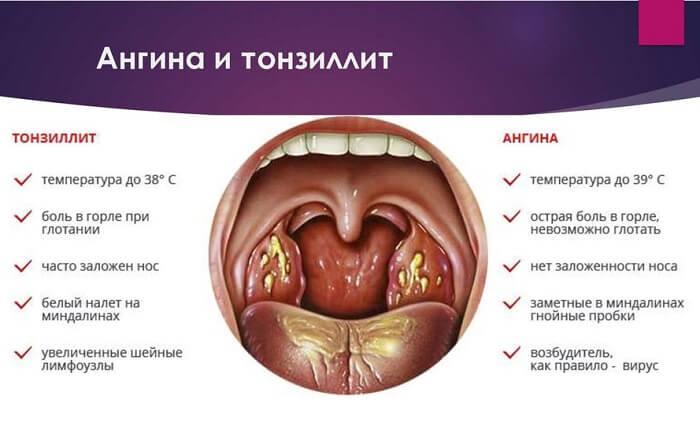 Ангина и тонзилит