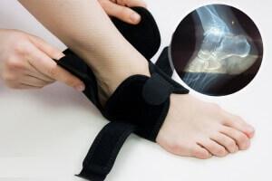 Корсет на ногу при переломе колена