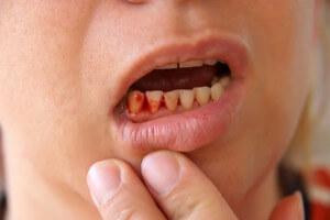 Симптомы и причины перелома челюсти