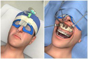 Операция на челюсть