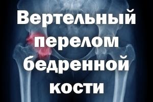 Вертельный перелом бедренной кости