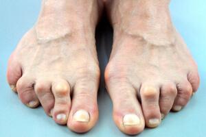 Дискомфорт в пальцах ног