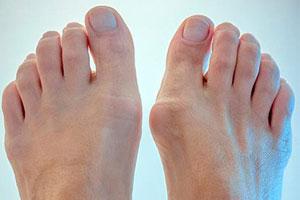 Дискомфорт в кости пальца