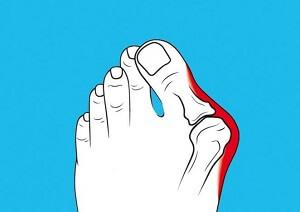 Ноет палец